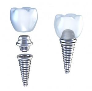 dental implants Tulsa